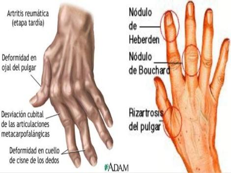 artrosis-y-terapia-ocupacional-8-638