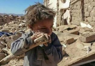 child-yemen-mm.jpg666-400x280